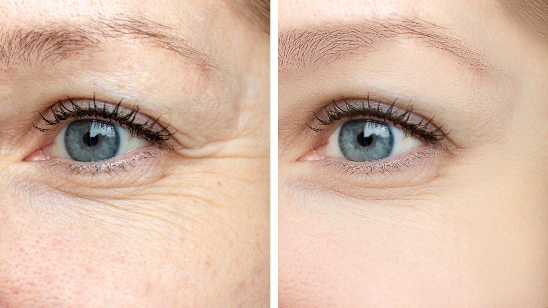 fine lines under eyes